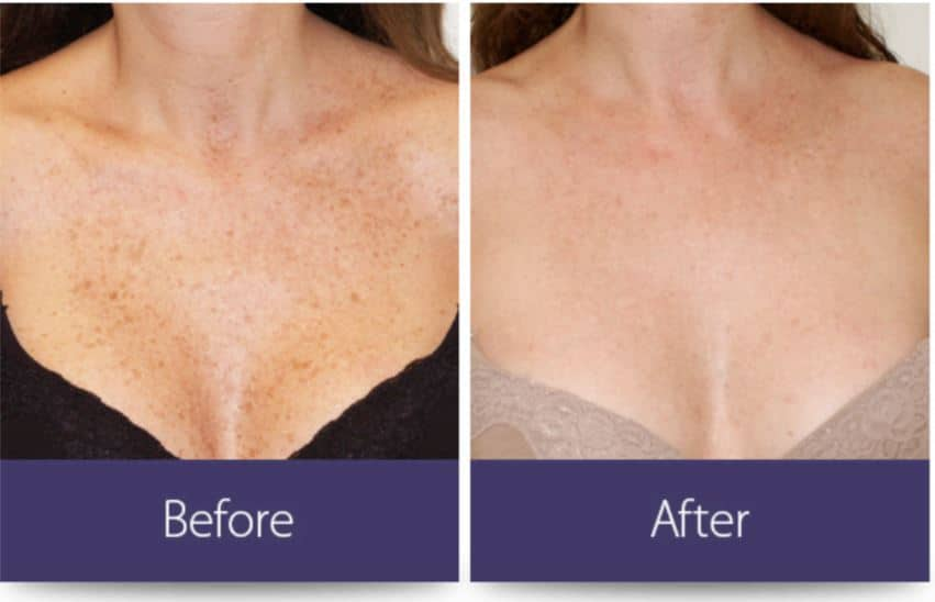 laser facelift before after