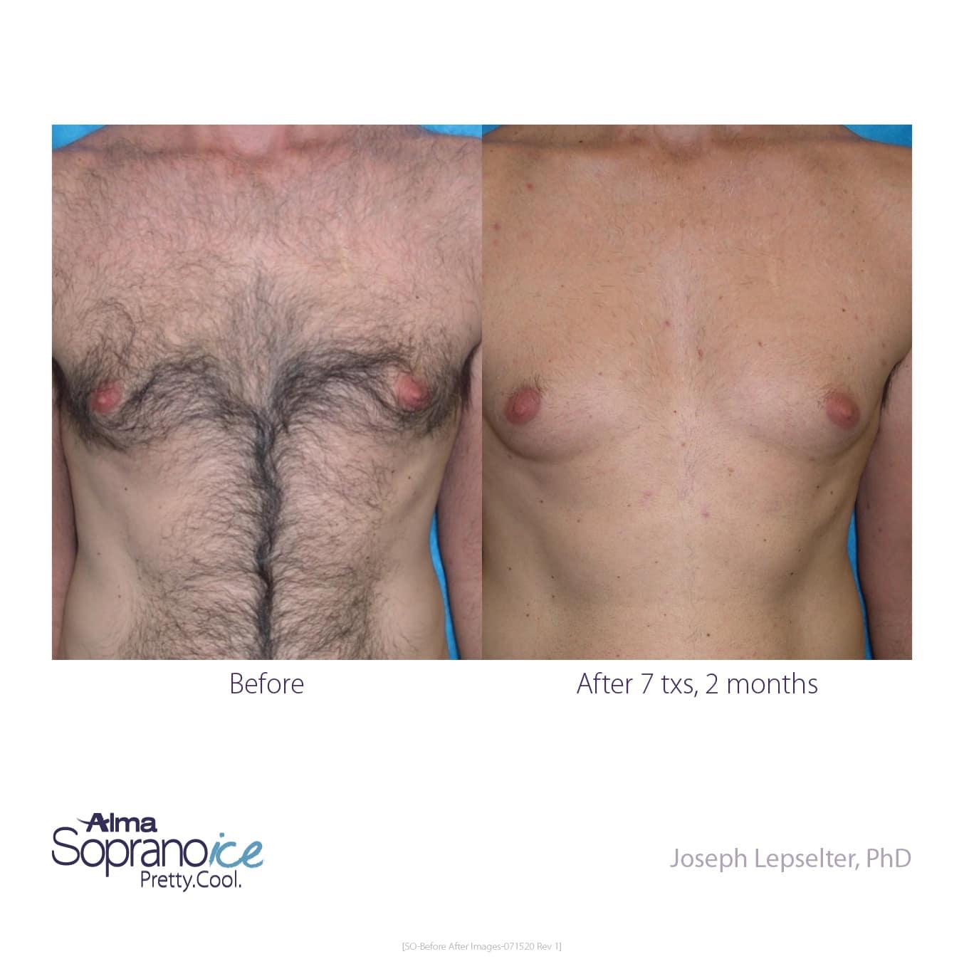 men check laser hair removal