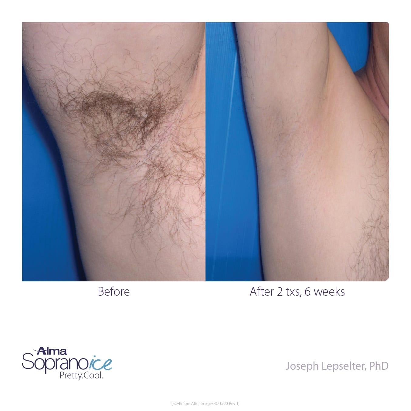 armpit laser hair removal