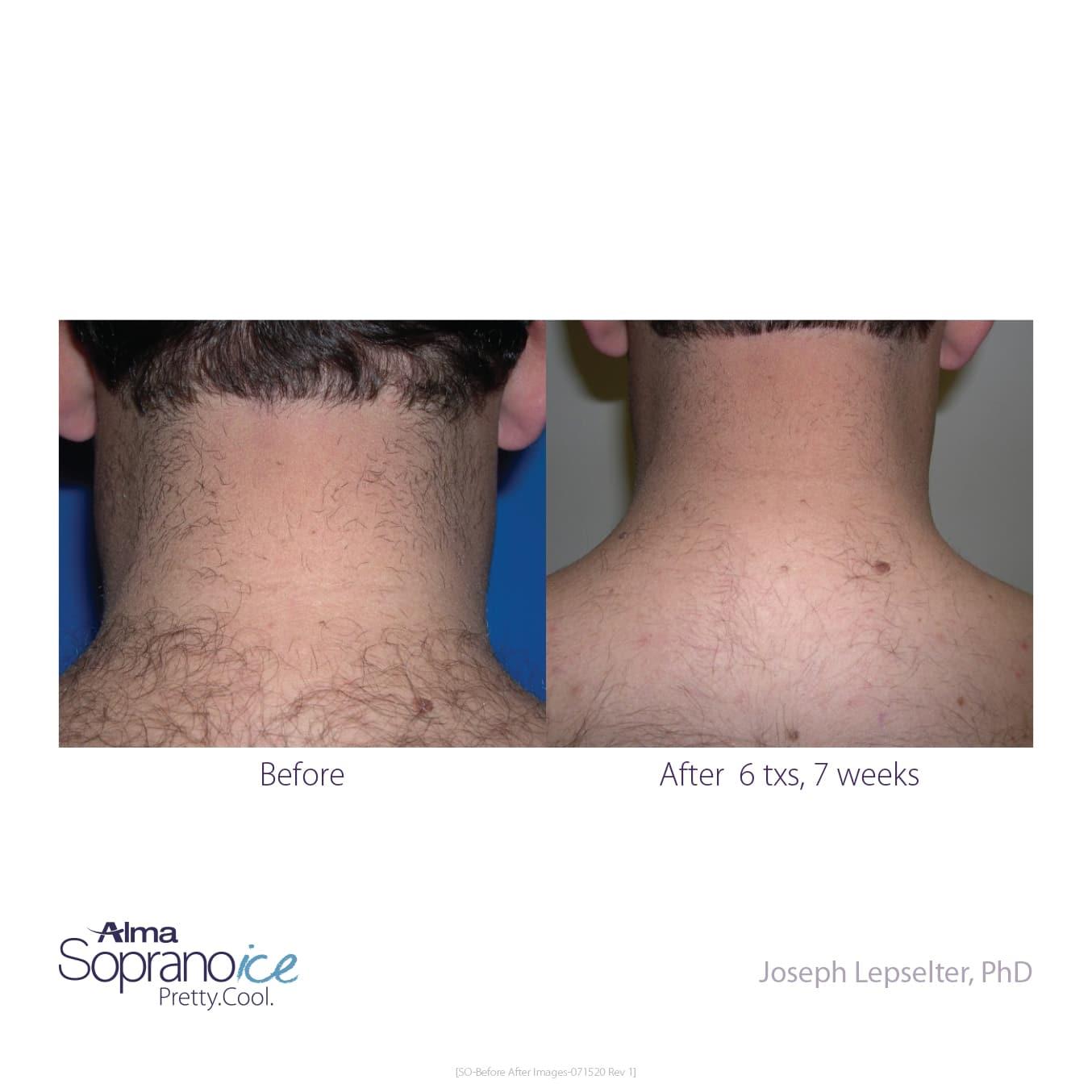men back of neck laser hair removal